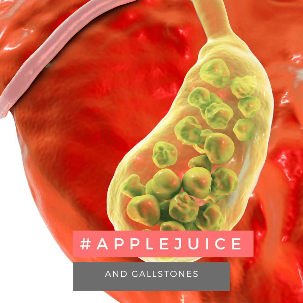 apple juice benefits for gallstones