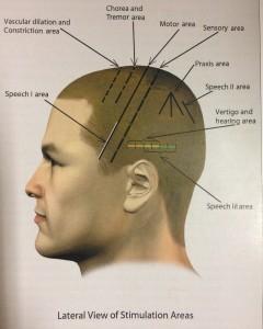 Scalp Acupuncture Diagram  Oneineedmorespaceco