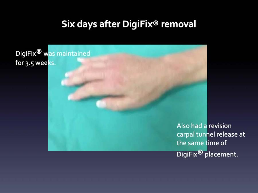 Case 10: Six days after DigiFix® removal