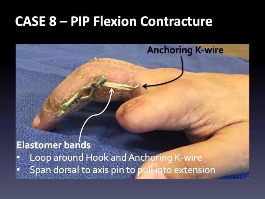 CASE 8: PIP Flexion Contracture