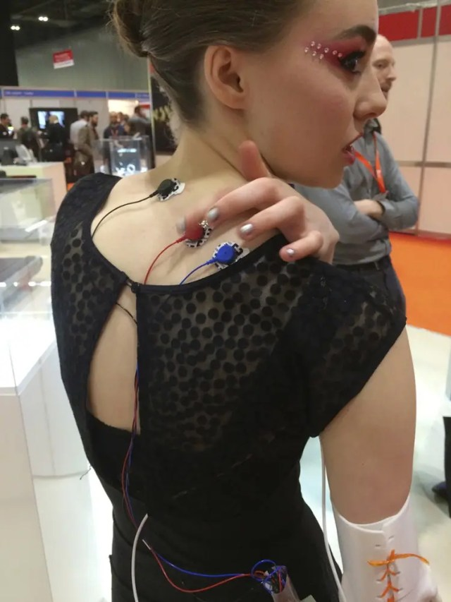 protesis-diseño-3D2