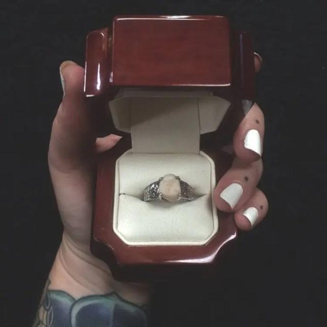 anillo-compromiso-muela-del-juicio-3