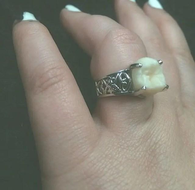 anillo-compromiso-muela-del-juicio-4