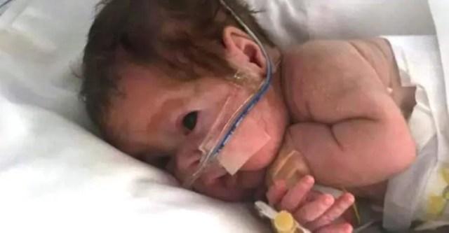 bebe-prematuro-atrapado-en-irlanda1-copy