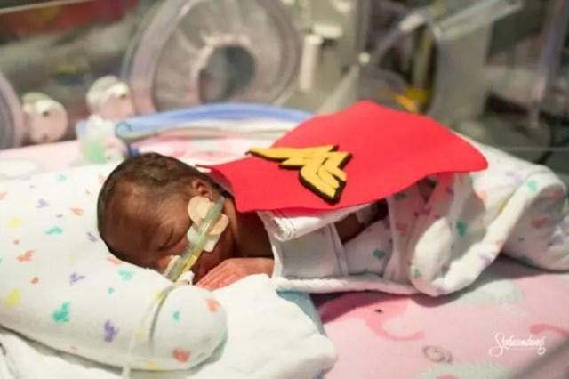 bebes-prematuros-uci-disfraz5