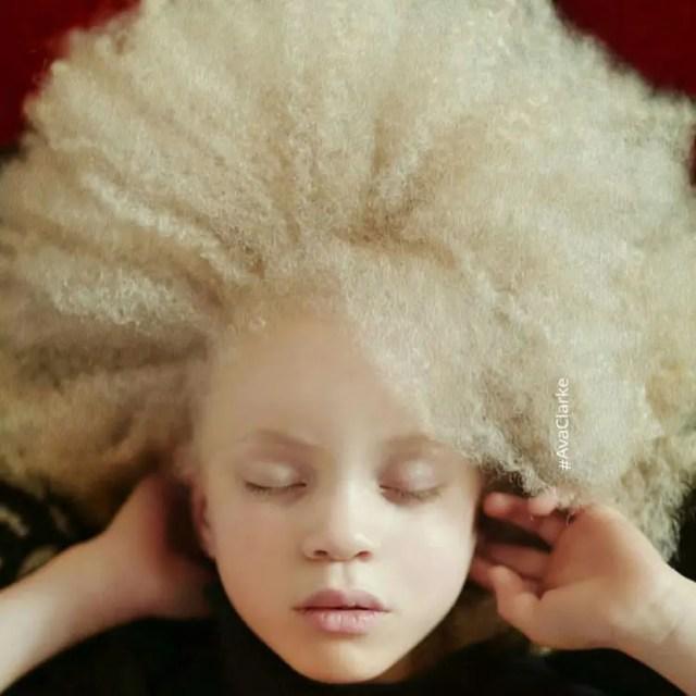 fotos-personas-albinas-11