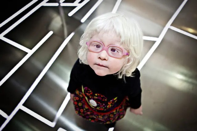 fotos-personas-albinas-14