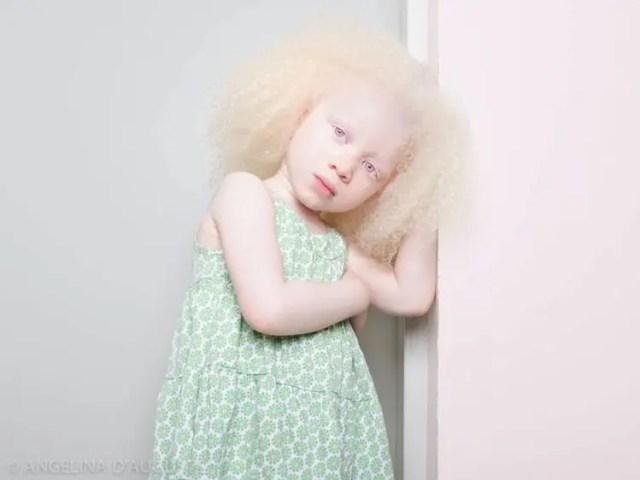 fotos-personas-albinas-16