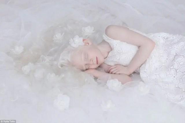 fotos-personas-albinas-3