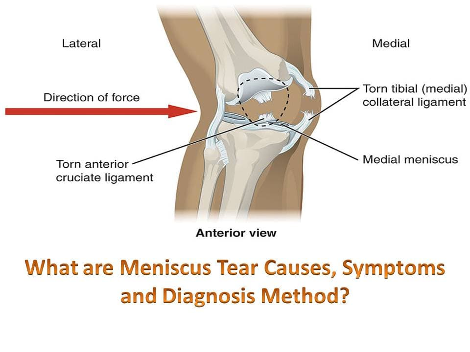 What are Meniscus Tear Causes, Symptoms and Diagnosis Method?