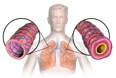 exercises for asthma