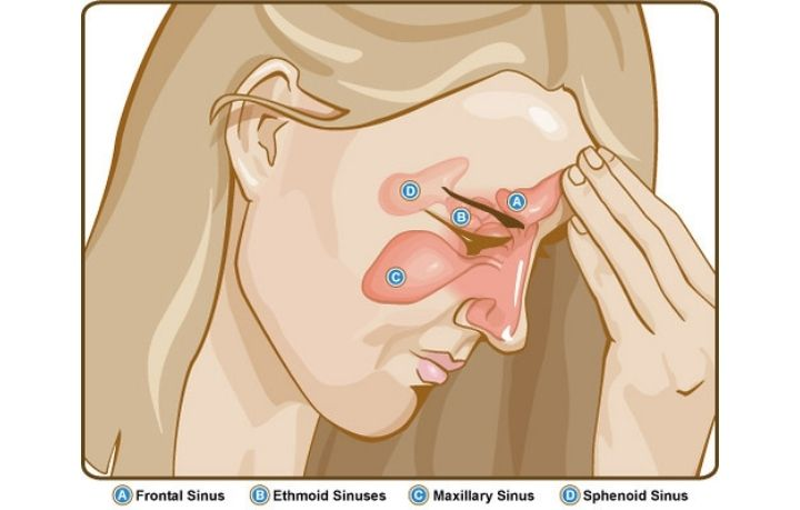 How to Get Rid of Sinus Infection