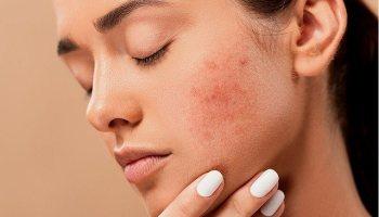 Hormonal Acne Natural Treatments