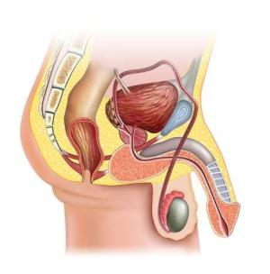 Impotence Remedies | Cures for Impotence  Impotence Causes