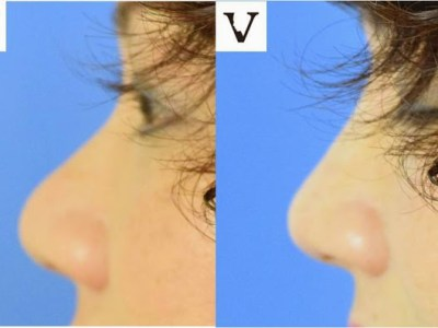 bulbous tip nose correction