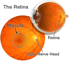 Retinal Detachment - What It Is, What Causes It, and How ...