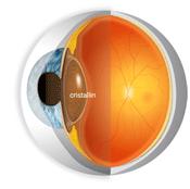 oeil-cataracte