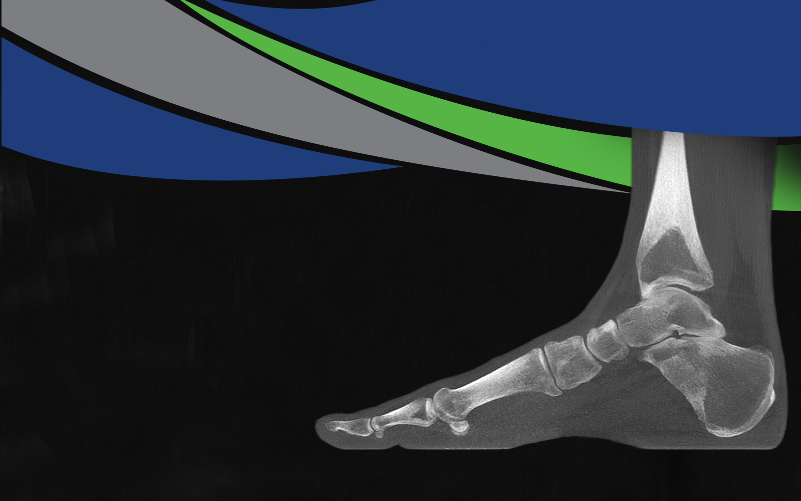 pedCAT | Foot & Ankle Image | The Orthopaedic Center