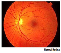 VISN 2 Diseases and Conditions - Digital Retinal Screening ...