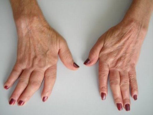 Risultati immagini per artrite reumatoide
