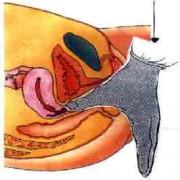 perineale massaggio