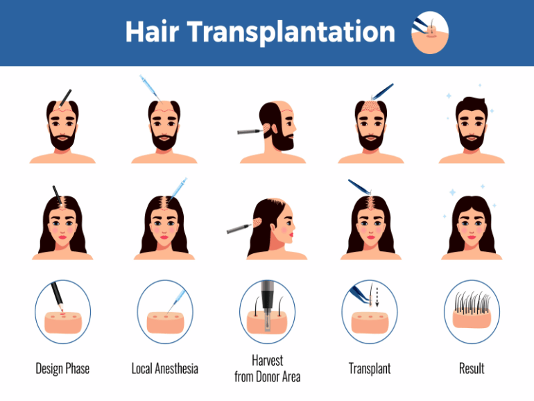 What Is The Best Age For Hair Transplant In Dubai 1