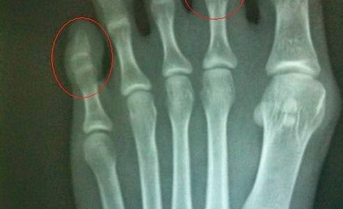 Testimoni: Tulang Retak Dan Ostematrix