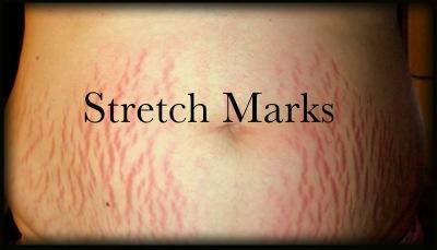 Stretch Marks: Petanda Hilang Kolagen!