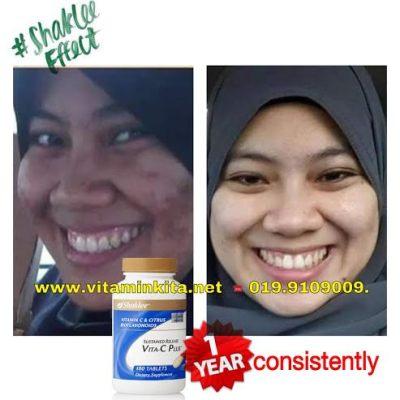 putihkan kulit dengan vitamin c 5