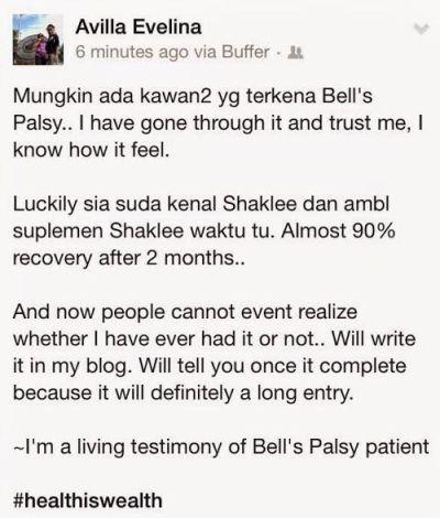 penyakit bell's palsy vivix 5