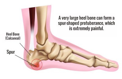 apa itu heel spurs