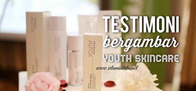 Testimoni Youth Skincare Bergambar ~ Kulit Lebih Muda, Cantik Berseri