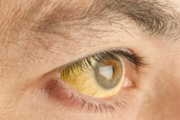 Argentina tem dois mortos por febre amarela após viagens ao Brasil