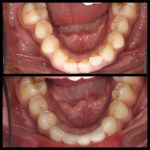 Lower teeth witha dn without braces - Viva Dental Studio, Hornchurch
