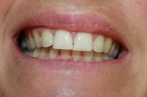 After Discreet Braces Viva Dental Studio Essex