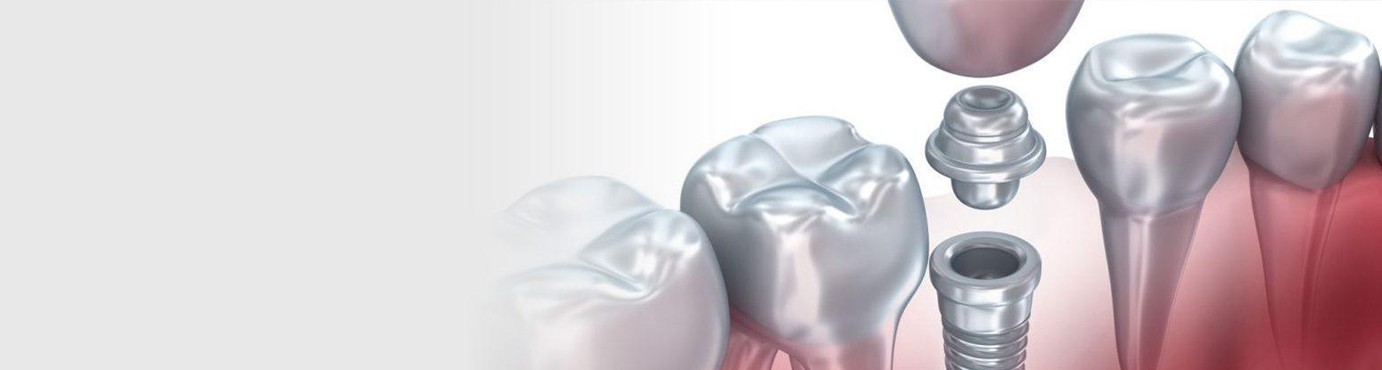 Dental Implants Viva Dental Studio Essex