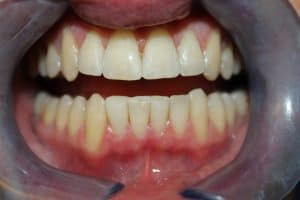 Griffiths Jack after Cosmetic Bonding Viva Dental Studio Essex