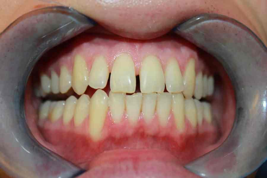 Griffiths Jack before Cosmetic Bonding Viva Dental Studio Essex