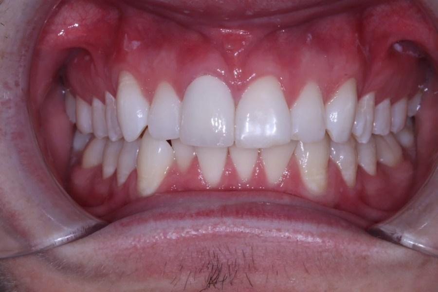 Post Crown Cosmetic Dentistry Viva Dental Studio Hornchurch