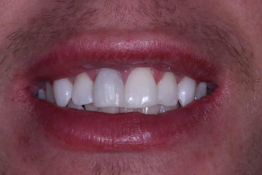 Post Whiting Cosmetic Dentistry Viva Dental Studio Essex