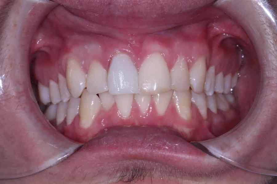 Pre Whiting Cosmetic Dentistry Viva Dental Studio Hornchurch