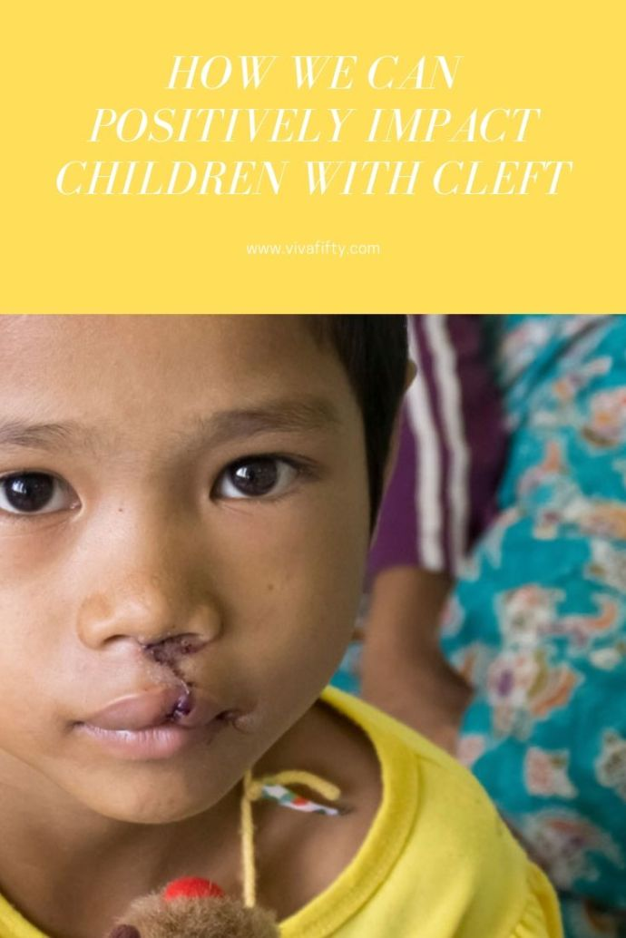 Alliance for Smiles offers children and families with cleft anomalies hope for a bright future. we interviewed Alison Healy, CEO, to find out more. #cleftpalate #cleft #cleftlip
