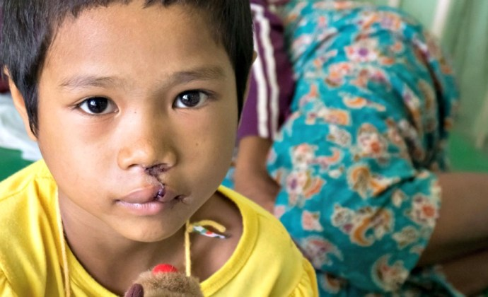 Alliance for Smiles offers children and families with cleft anomalies hope for a bright future. we interviewed Alison Healy, CEO, to find out more.