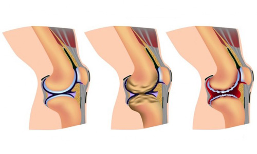 curare l'artrite