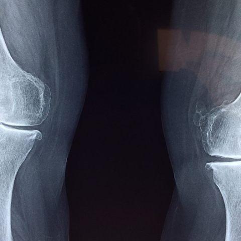 magnesio-articulaciones-para que sirve