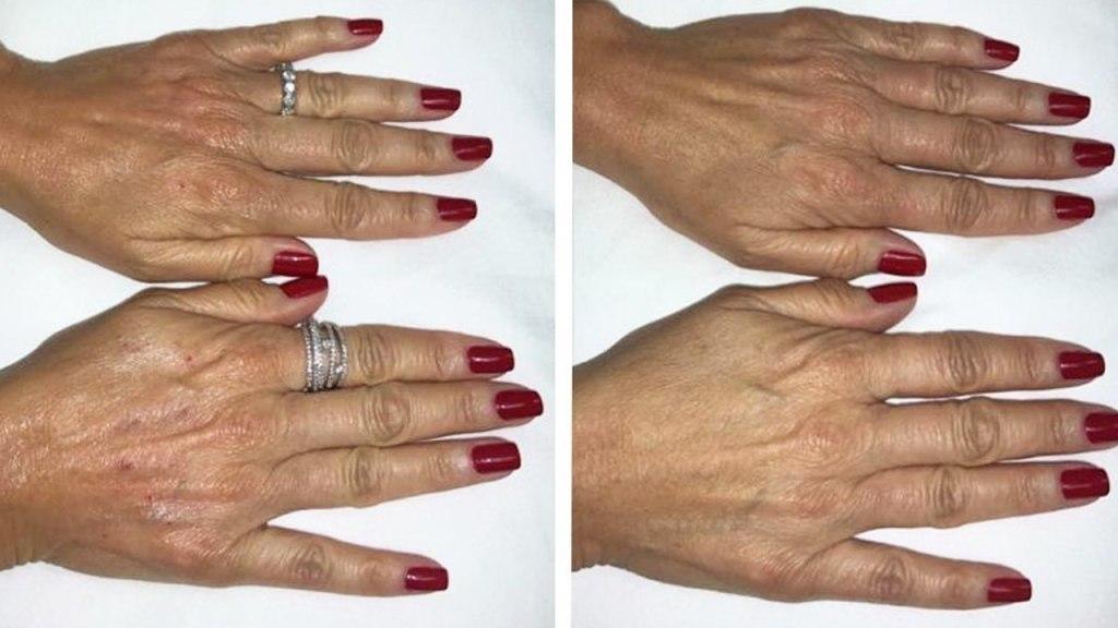 remedios contra las arrugas de las manos