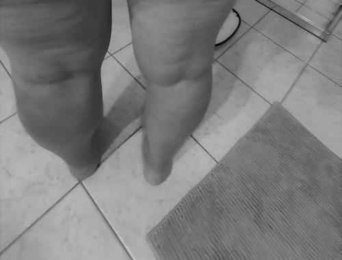 Trombose been - Mijn ervaring met trombosebeen