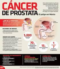 visita a la próstata en la que consistentemente