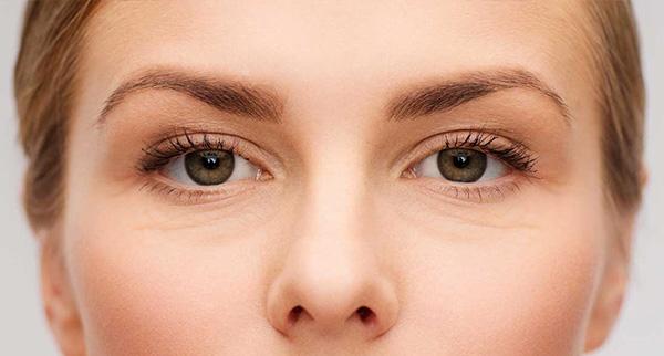 Arrugas en el contorno de ojos a temprana edad