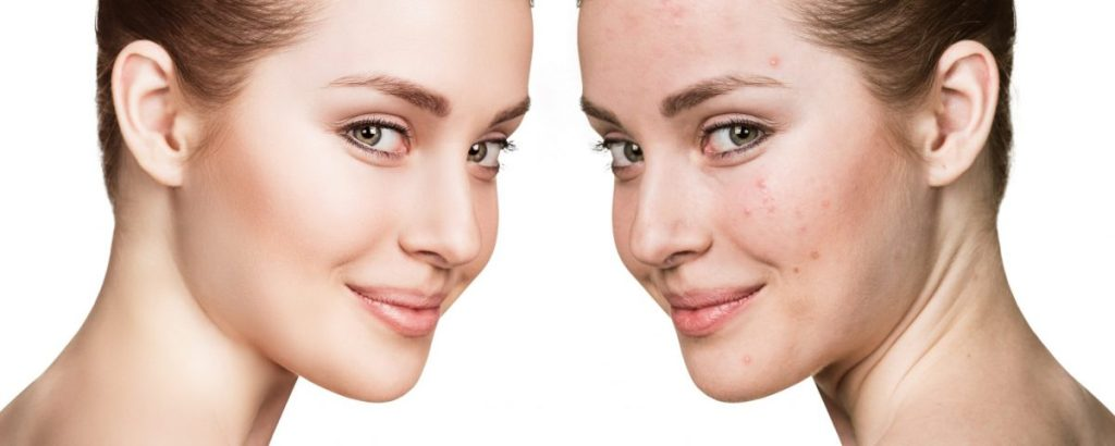 10 Home Remedies to get rid of Acne and Pimples